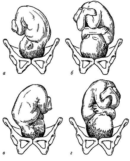 Биомеханизмы родов. П.А. Карпов, О.П. Лебедева, Н.В. Сухих.