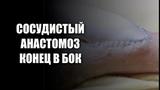 СОСУДИСТЫЙ АНАСТОМОЗ КОНЕЦ В БОК (ПАРАШЮТНАЯ ТЕХНИКА) VASCULAR ANASTOMOSIS (PARACHUTE TECHNIQUE)