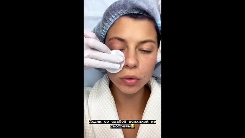 Биоревитализация Аквашайн. Зачем увлажнять кожу с помощью инъекций