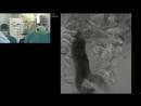 Процедура имплантации стент-графта «Анаконда» в условиях сложной анатомии
