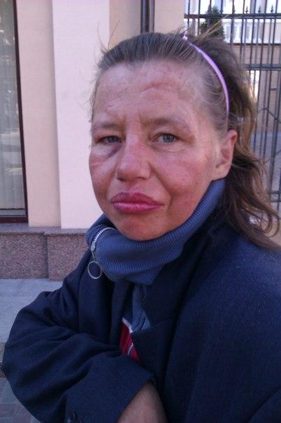 лицо алкоголика женщины фото