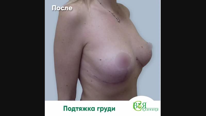 Подтяжка груди Своя клиники