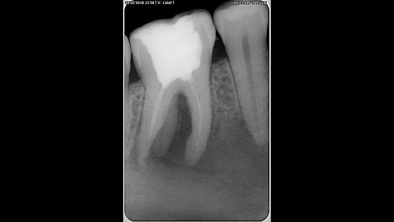 Как избежать выхода гипохлорита за верхушку Гипохлоритная авария Гипохлорит натрия в стоматологии