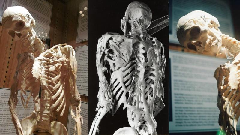 Что такое синдром каменного человека Перевод DeeAFilm