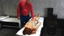 Как выглядит Прогрессирующая мышечная дистрофия, миопатия. Симптомы, лечение. Маленький стриптиз.