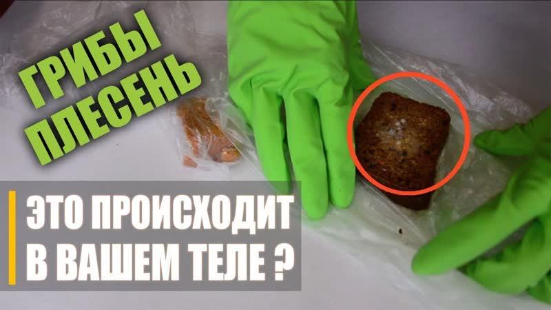 ЭКСПЕРИМЕНТ Что Способствует Росту Грибков в Теле Лучшее средство против грибков и кандиды