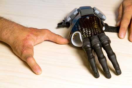 Если вы ищете естественную, индивидуальную систему протезирования, то вам лучше всего подойдет силиконовый протез для рук или пальцев.