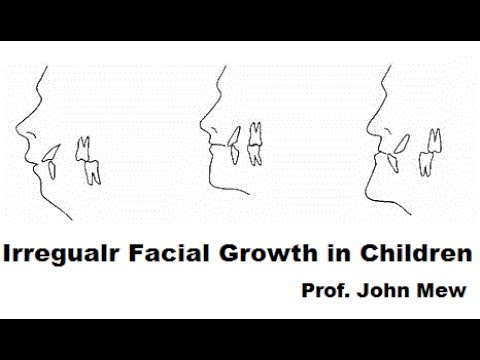 Importance Of Dental Professionals To Recognise Irregular Facial Growth In Children By Prof John Mew