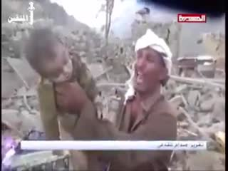 +١٨ The crimes of Saudi Arabia and the UAE against children in Yemen because of the silence of the world