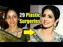 Sridevi 29 Plastic Surgeries Lead To Her Demise - Reports