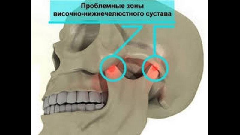 Лечение височно-нижнечелюстного сустава! ВНЧС. Часть 2