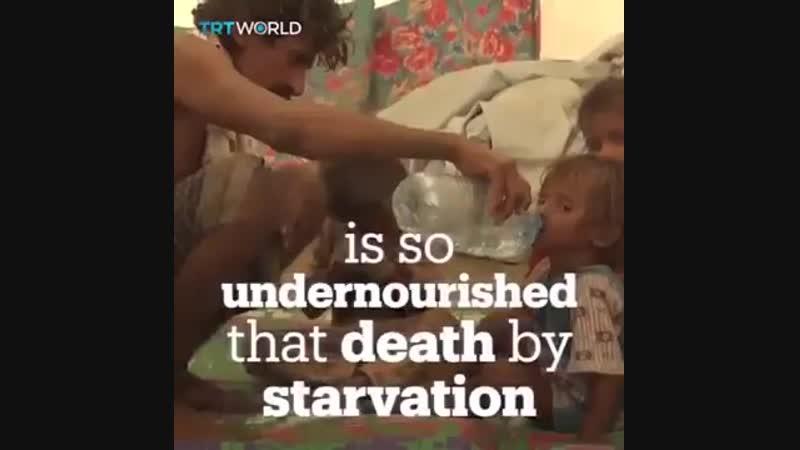 La pire famine en 100 ans Comment peut on croire qu'au XXIe siècle des enfants meurent parce qu'ils n'ont pas de nourriture à m
