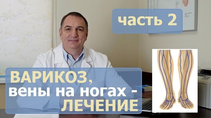 ВАРИКОЗ причины ЛЕЧЕНИЕ часть 2 Как лечить варикозное расширение вен у женщин и у мужчин
