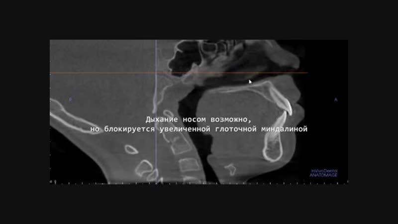 Мастер-класс по функциональной диагностике в ортодонтии на КЛКТ, ориентированной на дыхательные пути