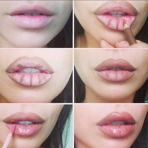 увеличение объема губ.