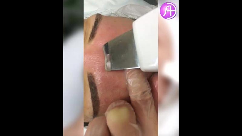 Ультразвуковая чистка лица в МЦ ЛазерЭстетика
