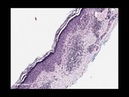 Loyola Dermatopathology Review Mini-lecture Series: the ALL Peanut Butter Differential