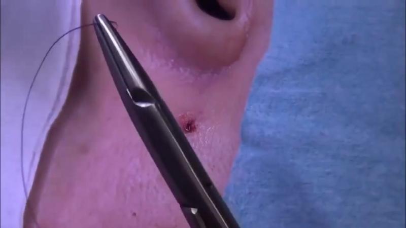 Хирургическое удаление бородавки на лице