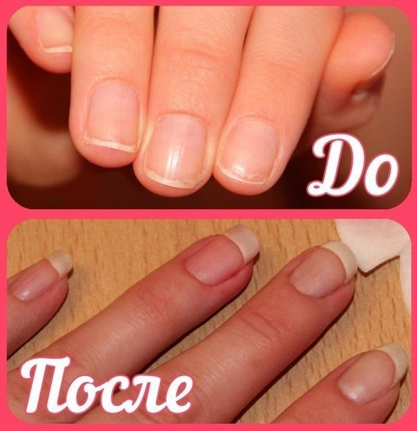 """BIG NAILS FOR COUPLE OF DAYS of the Girl, super result! I advise all! It is very simple to grow long, thanks to the simple recipe! ;) 1. Half teaspoon... To read further -\"""" >"""