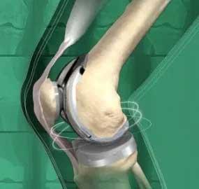 Узнайте об операции по замене коленного сустава, включая причины замены коленного сустава, риски и что ожидать до, во время и после операции.
