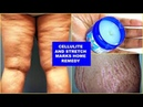 REDUCE CELLULITE AND STRETCH MARKS FAST AND EFFECTIVELY, WITH JUST 3 INGREDIENTS |Khichi Beauty