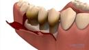 Parodontie par lambeaux - Centres dentaires Lapointe