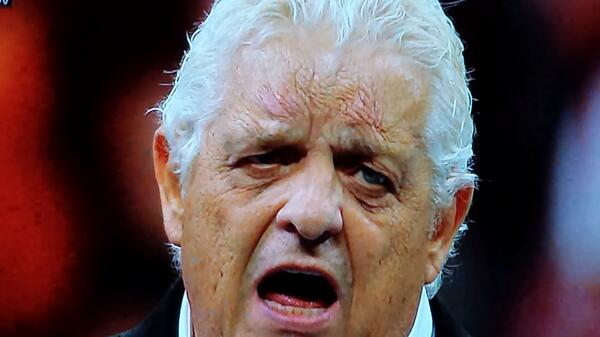 Dusty Rhodes Forehead Scars Bad Blading Job