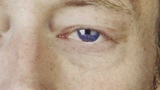 Thom Yorke's Lazy Eye for an Hour
